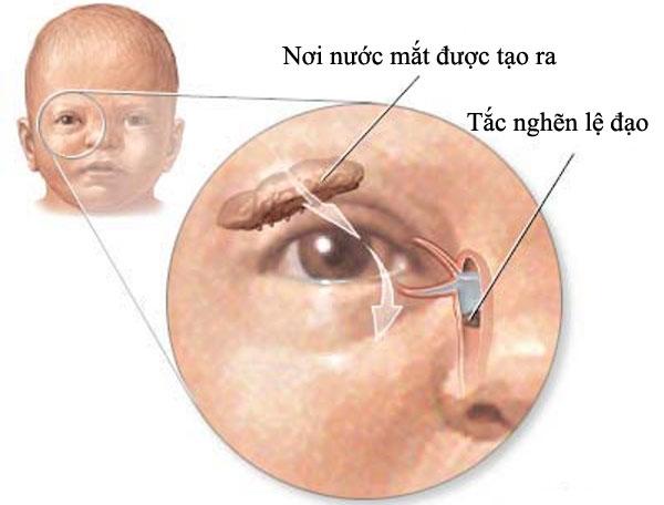 Dấu hiệu trẻ sơ sinh bị tắc tuyến lệ và phương pháp điều trị