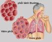 Viêm phổi là bệnh gì?