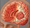 Dấu hiệu nhận biết bệnh u não
