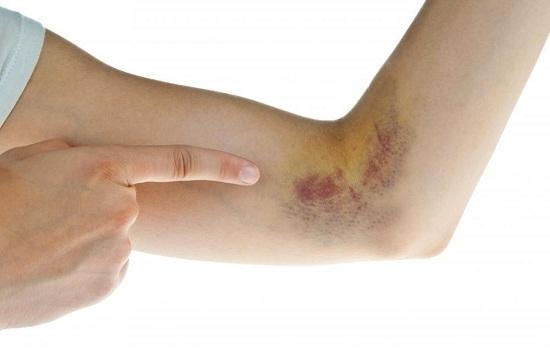 Vết bầm tím da đột nhiên xuất hiện cảnh báo nhiều bệnh