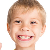 Hậu quả khôn lường khi trẻ bị sâu răng sữa