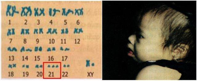Lý thuyết Sinh học lớp 9 bài 29: Bệnh và tật di truyền ở người